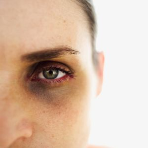 close-up of a woman with a black eye